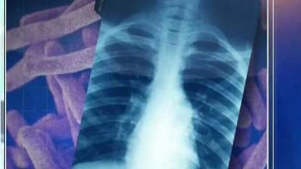 Posible_contagio_de_tuberculosis_en_USD